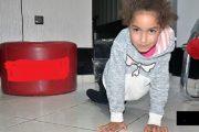 نداء استغاتة لمساعدة طفلة على العلاج بتركيا من مرض يمنعها من المشي