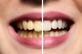 بيّض أسنانك طبيعياً وبلا أضرار!