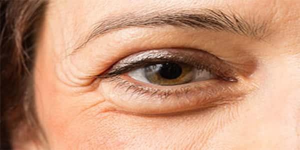إليك وصفة طبيعية ومجربة للقضاء نهائيا على مشكلة تورم العينين !