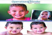 عمليات مجانية للأطفال المصابين بالتشوهات الخلقية بالدار البيضاء