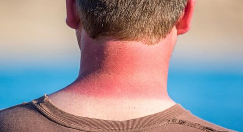 كيف تحمي نفسك من أشعة الشمس الضارة في فصل الصيف