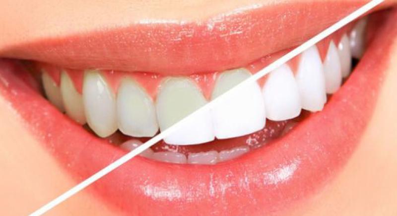 اكتشاف مادة بمفعول سحري لتبييض الاسنان بصورة آمنة
