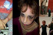 أكادير.. حملة فايسبوكية لإنقاذ طفلة من عنف والدتها المدمنة