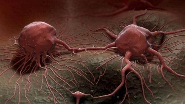 العلماء يكتشفون طريقة لمكافحة أخطر أنواع السرطان