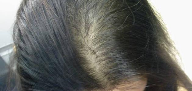إليك مجموعة من الطرق الطبيعية والسهلة لمواجهة مشكلة الشعر الخفيف