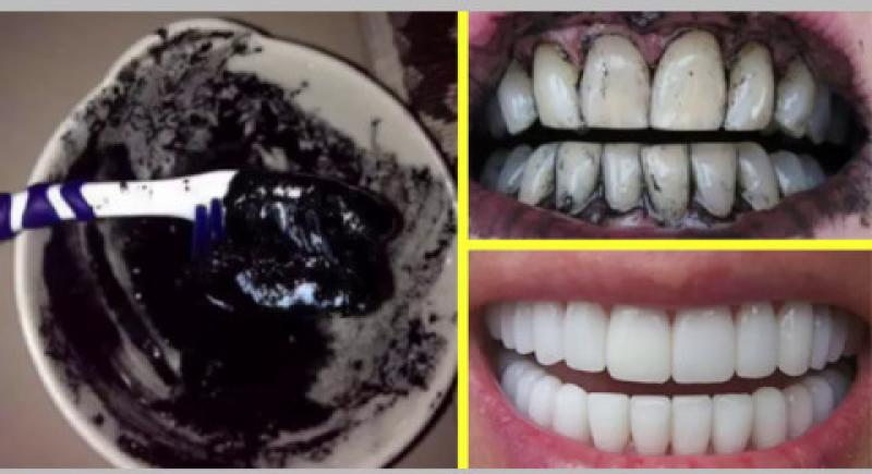 تبييض الأسنان بالفحم حقيقة ام خدعة؟
