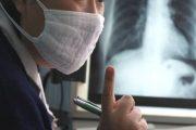 وزير الصحة: المغرب يسجل سنوياً 30 ألف حالة إصابة بداء السل