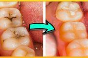 أسهل وصفة للقضاء على تسوس الأسنان في زمن قياسي !