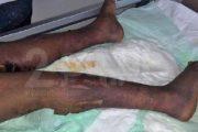 قضية تعذيب خادمة بالبيضاء.. توقيف شرطي وتوبيخ آخرين