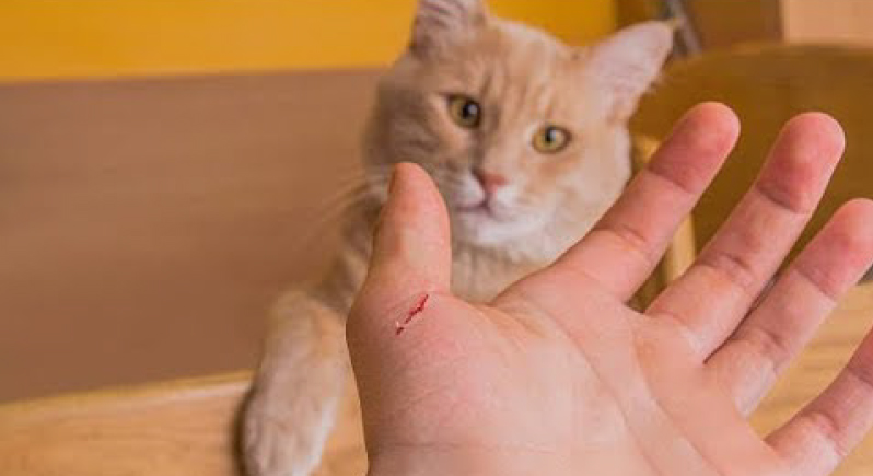 احذر عضة القطة.. قد تؤدي إلى بتر يدك