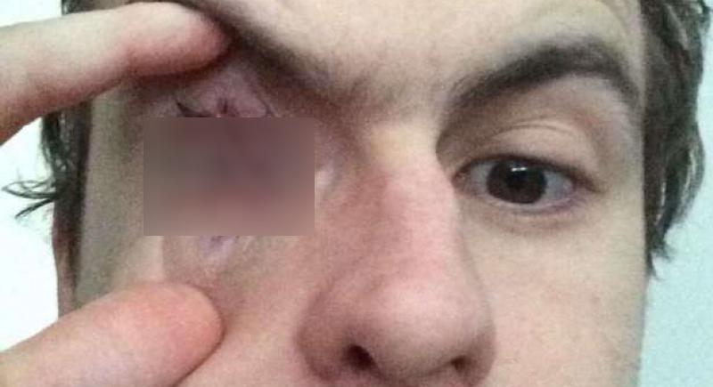 بسبب ارتداء العدسات اللاصقة.. رجل يصاب بالعمى في العين اليمنى