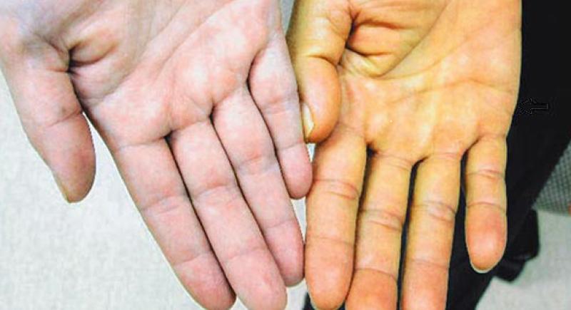 فقر الدم الخبيث.. أسباب وأعراض