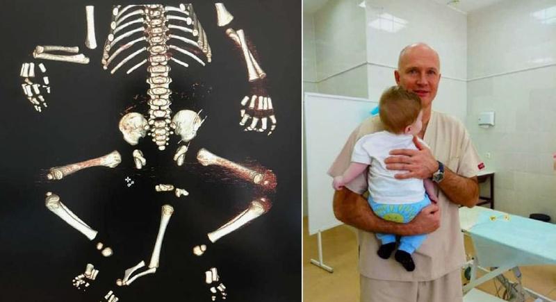 الأطباء ينقذون طفلا ولد بـ3 أرجل وجهازين تناسليين في روسيا
