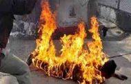 قام بحرق زوجته بالبنزين و(تنادم معه الحال) فأخدها للمستشفى