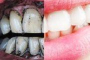 يشوه الابتسامة عوض تبييضها.. تعرفي على أضرار استخدام الفحم في الأسنان