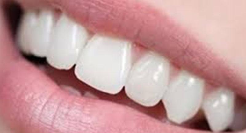 طرق سهلة وسحرية للحصول على أسنان ناصعة البياض