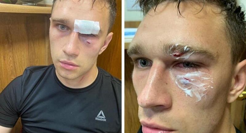 لاعب روسي يعتدي بالضرب المبرح على حكم أشهر في وجهه بطاقة حمراء (فيديو)