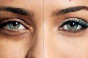 3 وصفات طبيعية للتخلص من الهالات السوداء تحت العين