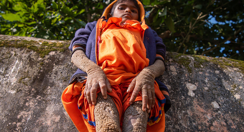 مرض نادر يصيب طفلة ويشل حركتها: جسدها تحول إلى حجارة (فيديو)