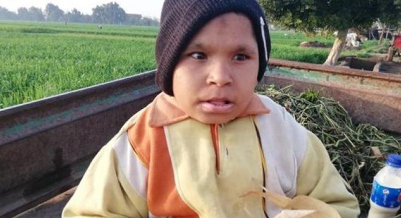 شاب عمره 21 عاما يعيش على الرضاعة والألبان منذ ولادته (فيديو)