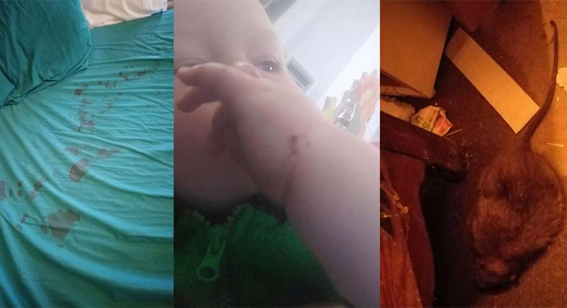 طفل يتعرض لهجوم من فأر ضخم.. عضه أثناء نومه وأغرق سريره بالدماء