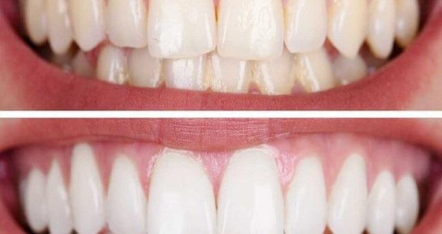 طرق طبيعية لإزالة جير الأسنان