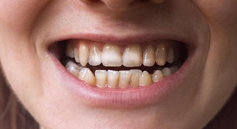 البقع البنية على الأسنان.. هل من طريقة للتخلص منها؟