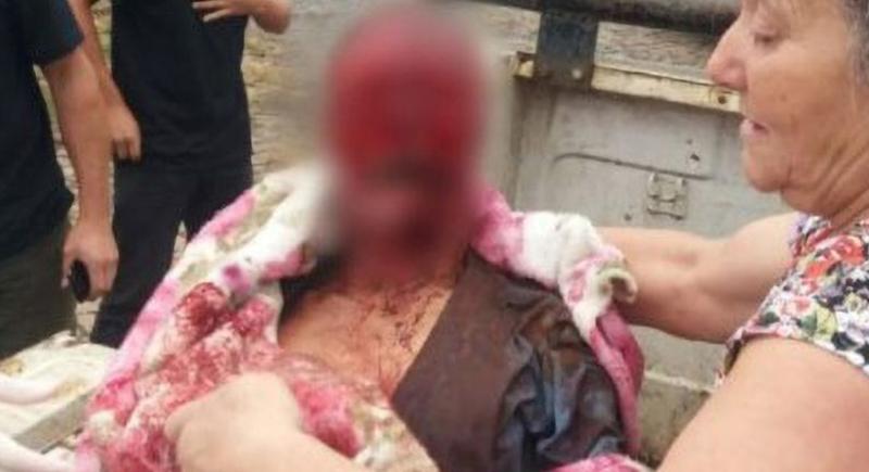 وفاة رجل بعد نهش وجهه من طرف7 كلاب بيتبول!