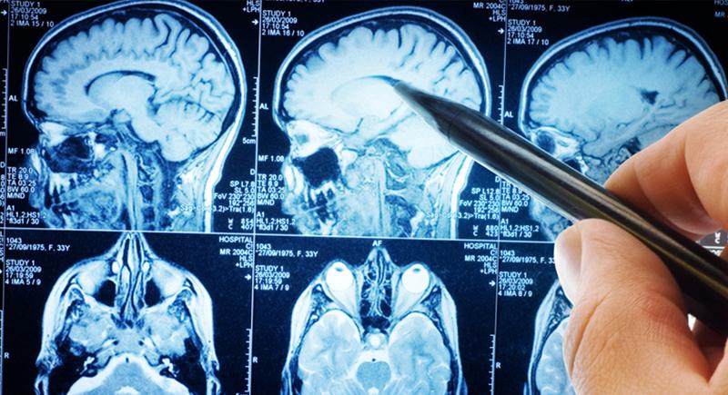 سلامة دماغك... مرتبطة بعدد أيام صيامك