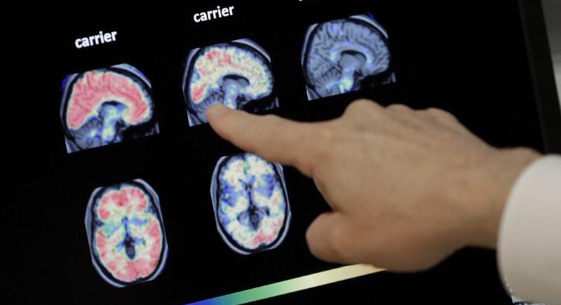 في اكتشاف غير متوقع.. هذا ما وجده العلماء في أدمغة مرضى الزهايمر المتوفين!
