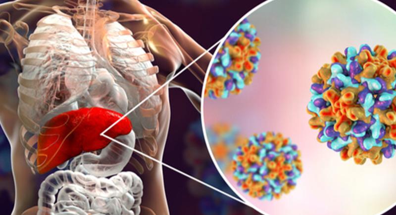الكبد الوبائي.. تعرف على أعراض المرض وأسبابه وطرق العلاج