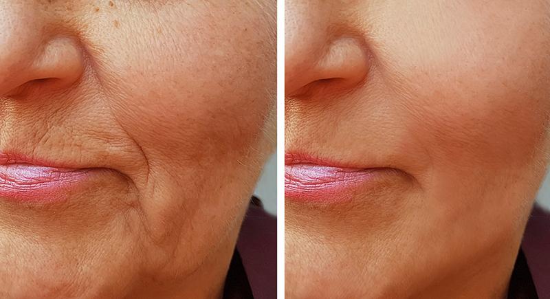 أسهل وسيلة للتخلص من تجاعيد الفم بطريقة طبيعة آمنة.. تعرف عليها